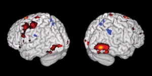Image of brain renderings highlighting various parts of the brain.