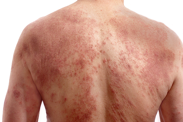 Psoriasis, a chronic skin disease, has persisted as long as people have manifested its dry red scaly patches on their skin. (Shutterstock Photo)