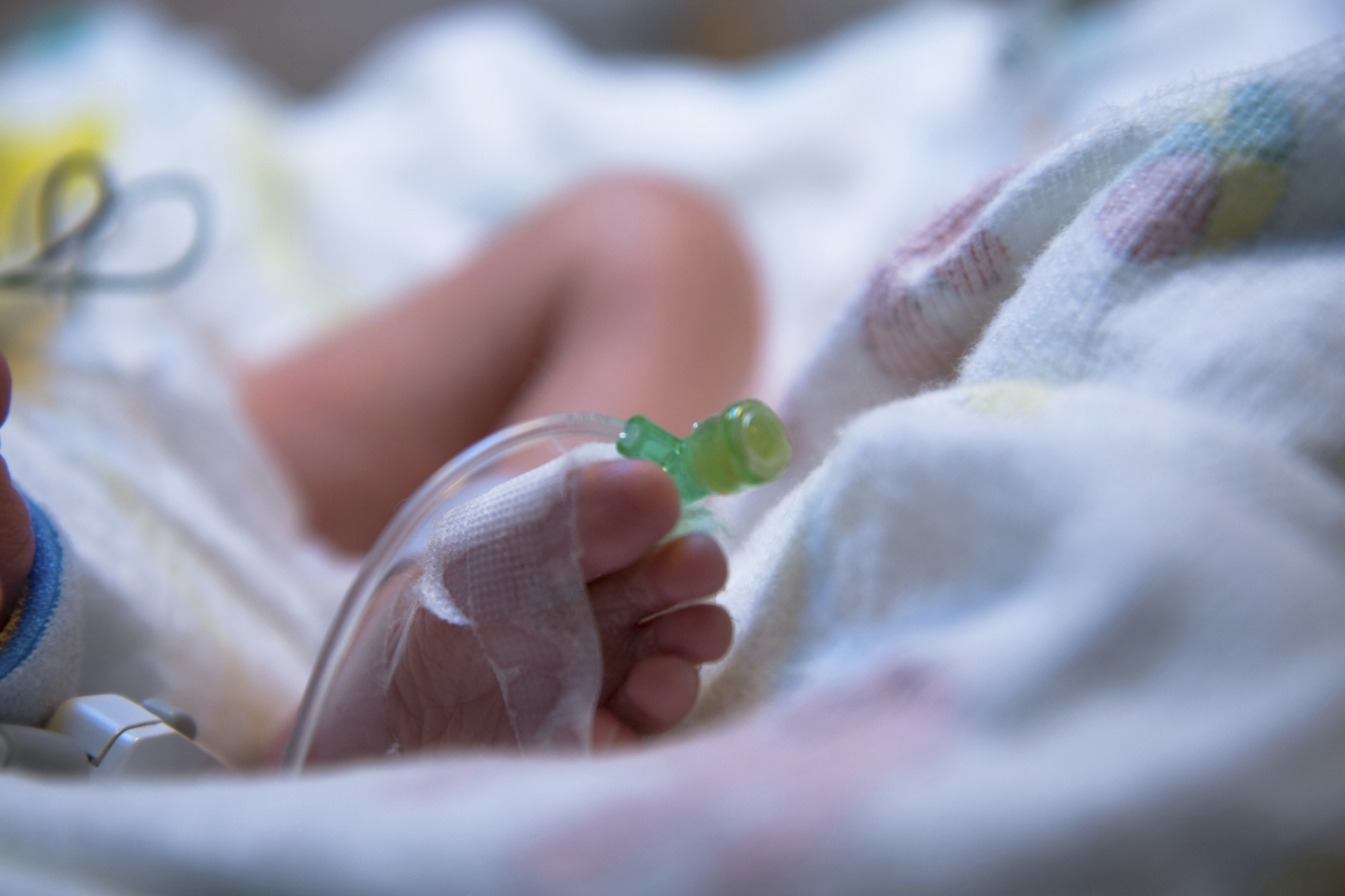 A premature baby undergoing medical procedures in the hospital (iStock Photo)