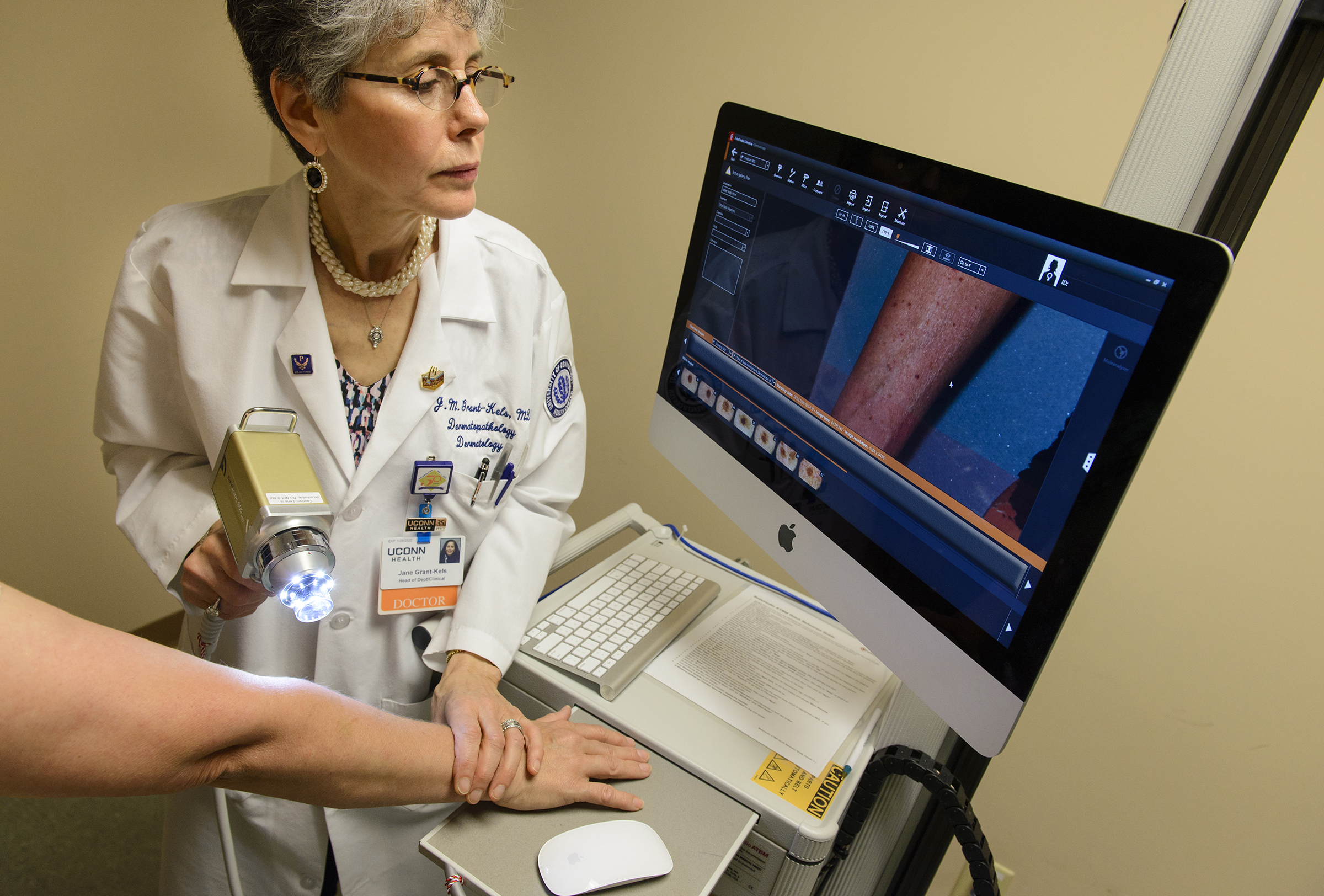 The latest advanced smart technology at UConn Health hunts for skin cancer and keeps an eye on changing moles. Dr. Jane Grant-Kels (shown here) says, 'This technology is going to help us save more lives from skin cancer and melanoma.' (Janine Gelineau/UConn Health Photo)