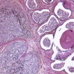 Microscopic photo of a professionally prepared slide demonstrating the cellular structure of the prostate gland adenocarcinoma. (iStock Photo)