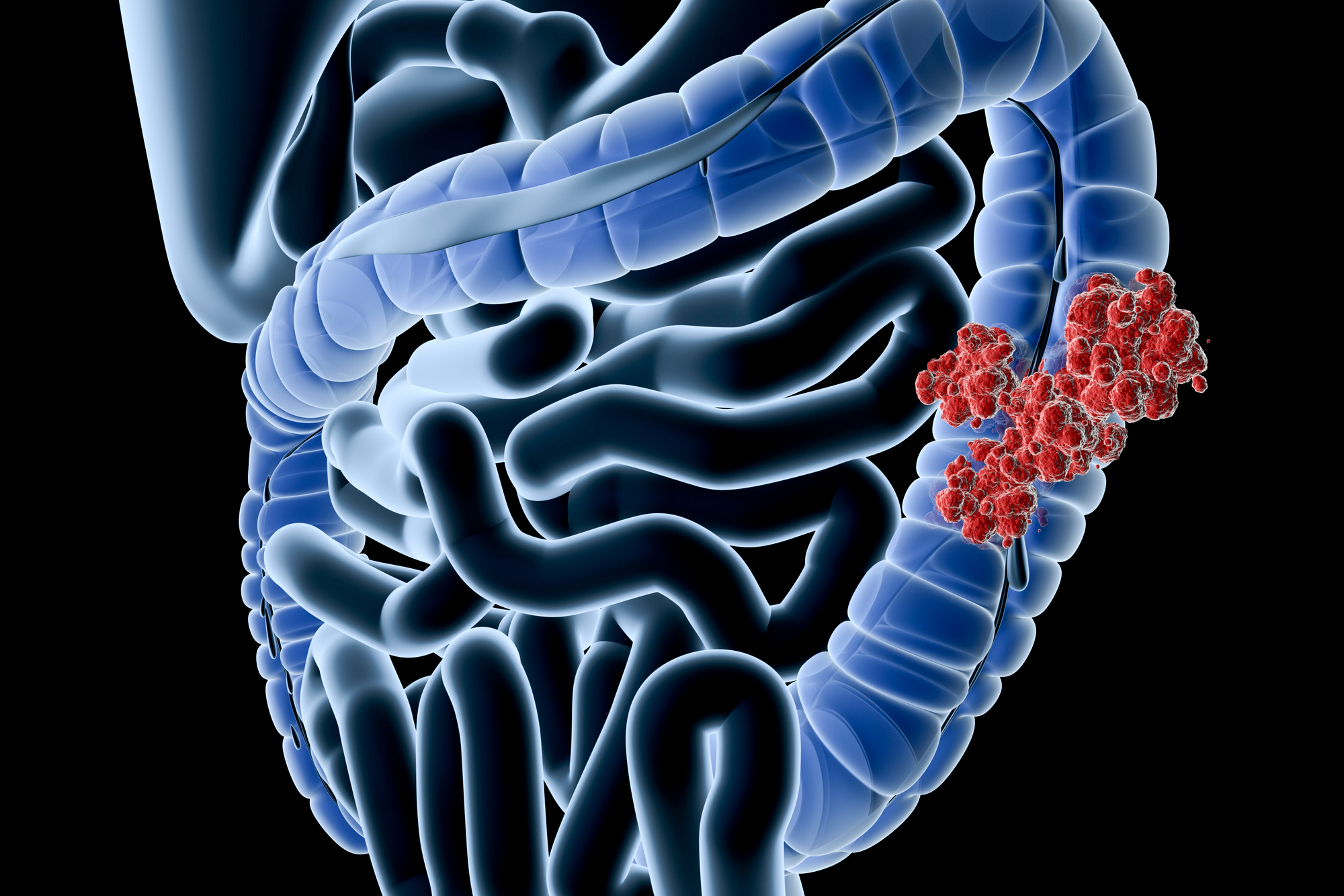 Colonoscopy Just the Start in Preventing Colorectal Cancer