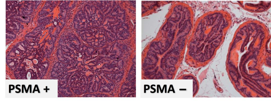More PSMA, more problems. Prostate cells with more prostate-specific membrane antigen (PSMA, image on the left) have more cancer cells (purple), growing in a more disorganized way than the open ducts in a prostate whose cells have little PSMA (image on the right). (Caromile and Shapiro/UConn Health Image)