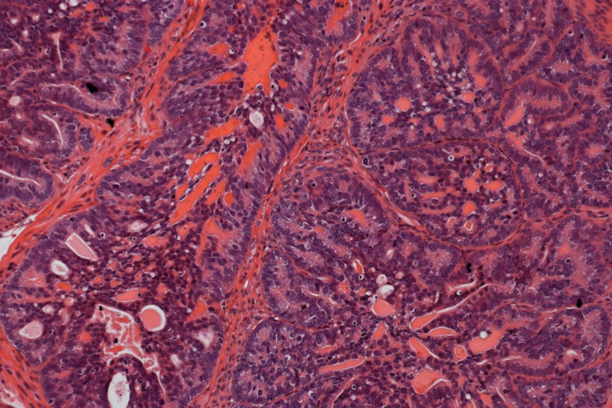 Mark of Malignancy Identified in Prostate Cancer